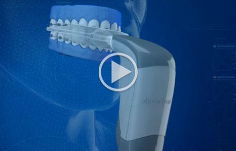 Acceledent Orthodontics Exclusively Edmonds WA