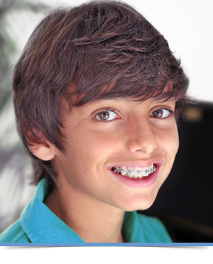 Braces Orthodontics Exclusively Edmonds WA