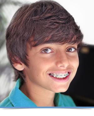Braces Orthodontics Exclusively Edmonds WA